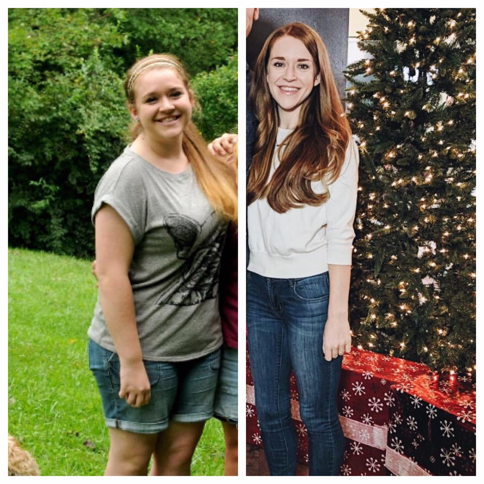 The Real Story Behind my Weight Loss Before and After Photo